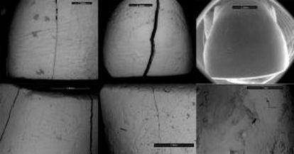 A microscopic view of dental striation.