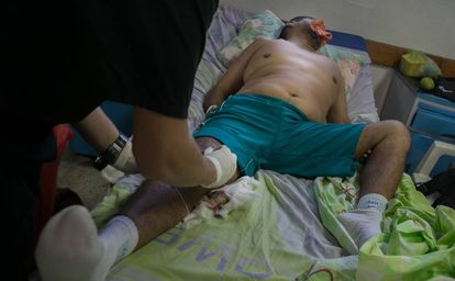 A doctor treats a patient without pain killers at Periferico de Coche, near Caracas.