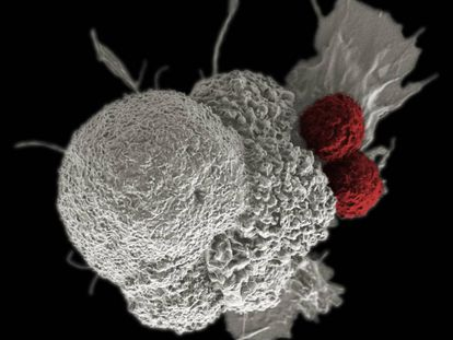 A cancer cell being attacked by two white cells.