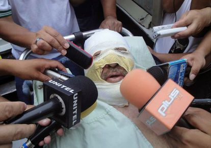 Fernando Vidal talks to reporters after he suffered burns when his radio station was attacked.
