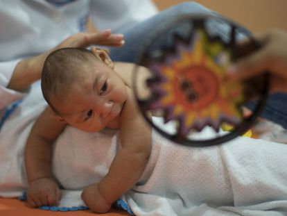 A baby born with microcephaly in Recife, Brazil.