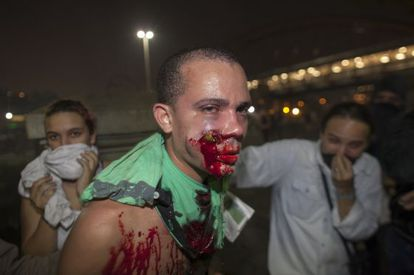 A demonstrator is seen with a foreign object in his face during clashes with riot police in a protest against bus fare price hikes June 20, 2013 in Rio de Janeiro, Brazil.