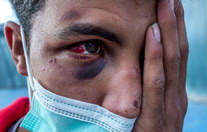 A Moroccan man attacked by a vigilante group.