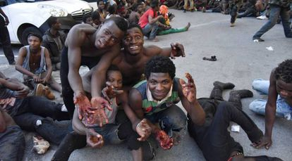 Migrants showing their injured hands after jumping the border fence in Ceuta in 2018.