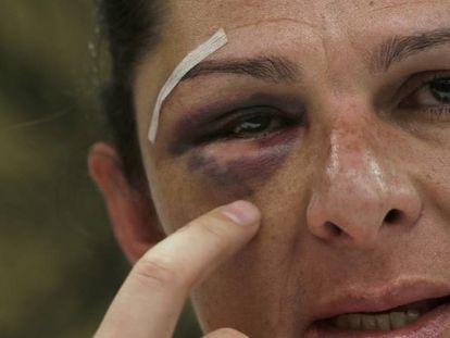 Ana Gabriela Guevara shows her shattered cheekbone.