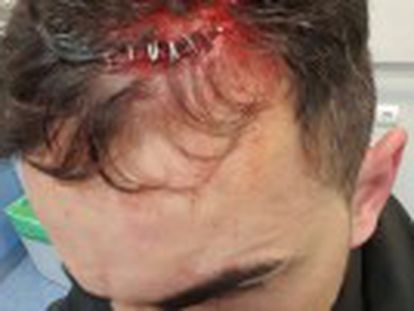 Brawl began after official asked man to stop leaning against his car in the Tetuán district