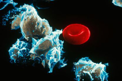 Cells with leukemia (left) next to a red blood cell.