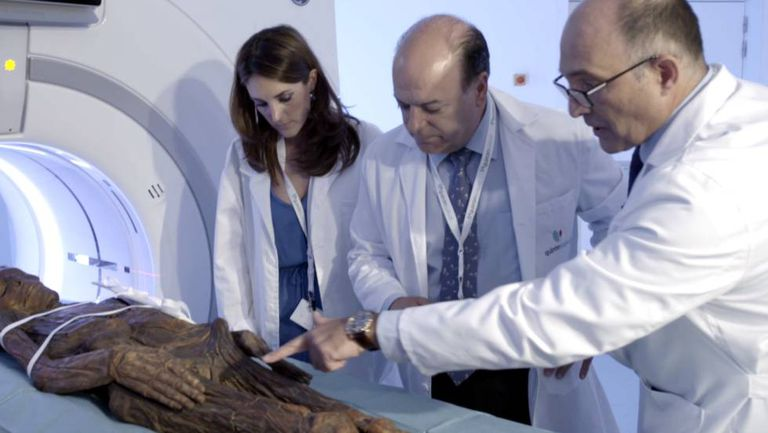 One of the mummies is examined at the Hospital QuirónSalud Madrid.