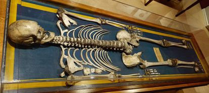 """Agustín Luengo's skeleton, """"The Extremaduran Giant"""". National Museum of Anthropology in Madrid."""