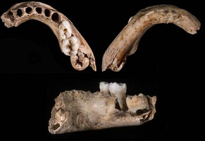 Three views of the five-year-old boy's jaw from the El Castillo cave in Cantabria.