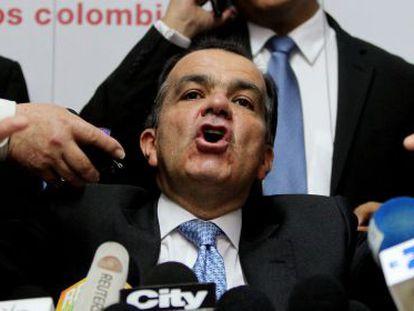 Oscar Iván Zuluaga speaking in Bogotá on Monday.