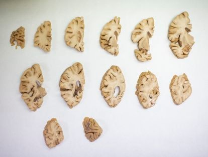 Sections of a dissected human brain at the CIEN Foundation.