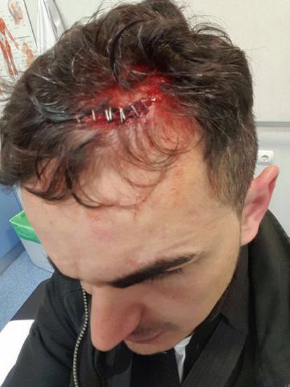 One of the officers injured in the incident.