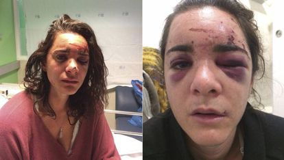 Andrea Sicignano in two photos of herself after the attack that she published on her Facebook account.