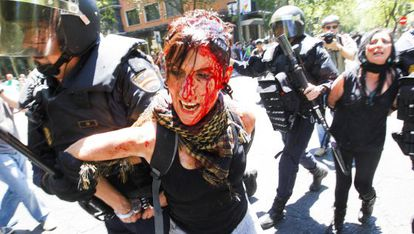 Seventy-six people were injured and eight arrested in Wednesday's protest.