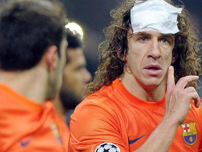FC Barcelona's Carles Puyol took a bash to the head in the San Siro.
