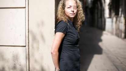 Ester Quintana, 42, lost an eye during a street protest in Barcelona.