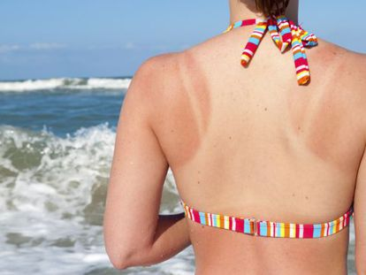 Learning how to correctly apply sunscreen can save us from burns and other skin problems.