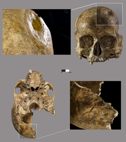 Evidence of trepanation and other injuries on the skull of the woman found at Dehesilla.