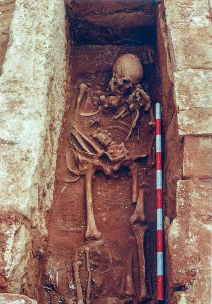 Skeleton of a Christian buried in Cercadilla who lived during the Caliphate years (756-929), bearing an axe wound to the head.