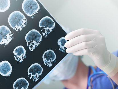A doctor studies a patient's brain damage.