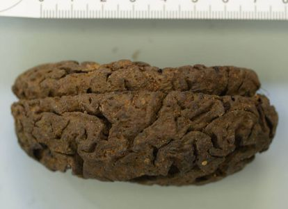 One of the 45 preserved brains from La Pedraja.