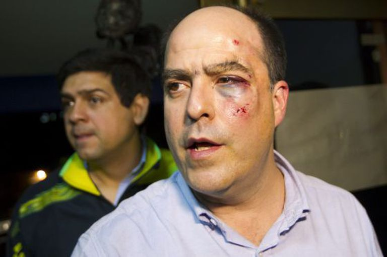 Venezuelan opposition lawmaker Julio Borges was injured in the fight that broke out in the National Assembly Wednesday.