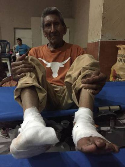 Domingo Lopez (79), with his feet in bandages after stepping on lava.