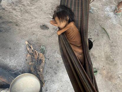 A Yanomami girl suffering from malnutrition and malaria in Maimasi, Brazil.
